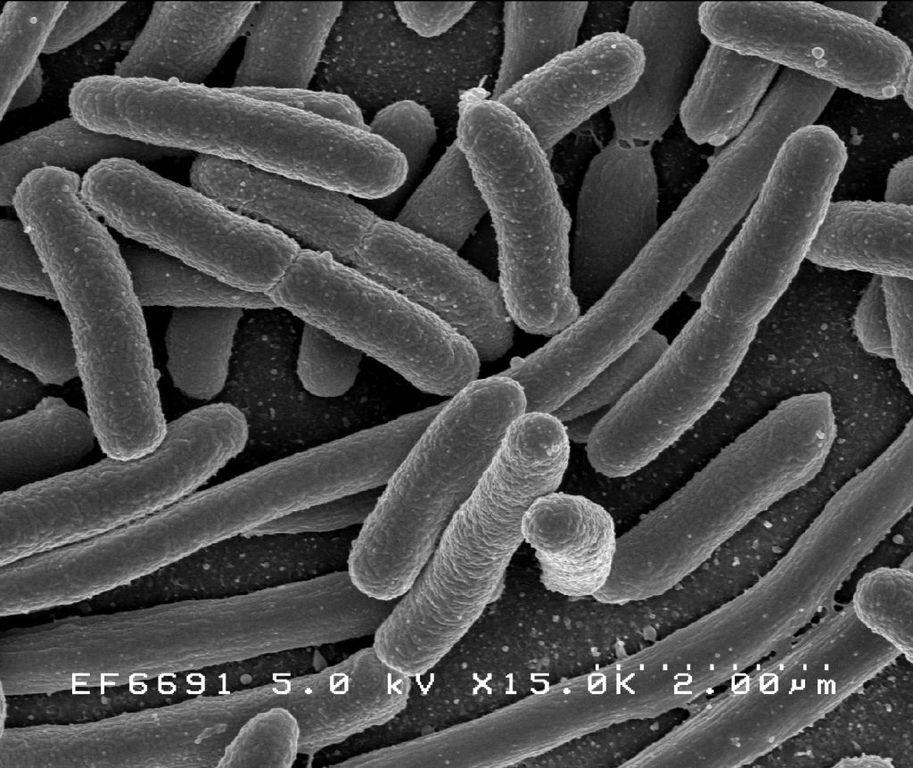 Bakterie E.coli - Pałeczka okrężnicy - Źródło: NIAID