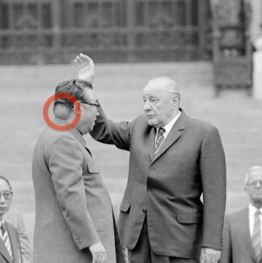 Jedno z nielicznych zdjęć Kim Ir Sena, na którym widać jego guz